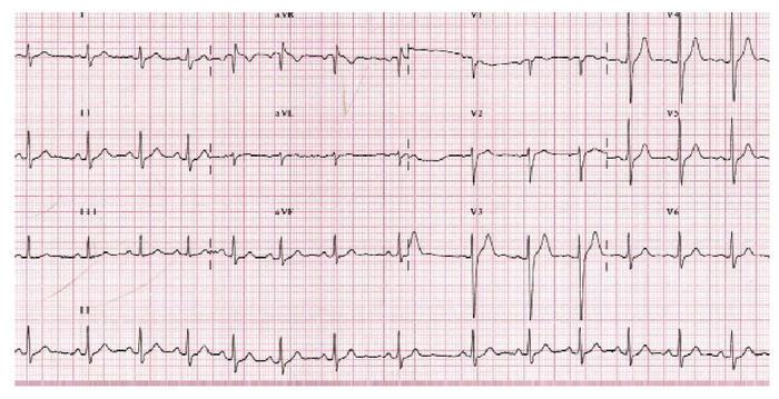 ECG Elettrocardiogramma a 50€